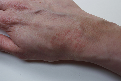 This entry was posted in The symptoms of spider bite on July 27, 2013 ...